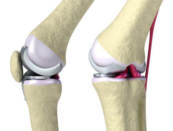 Операции по замене коленного сустава: доступная цена в Москве