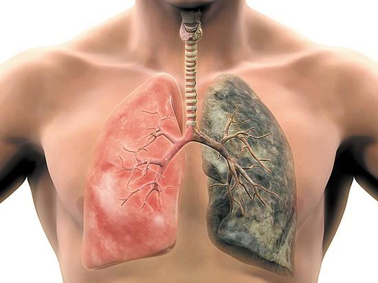 Третья стадия рака лёгких — применение дурвалумаба