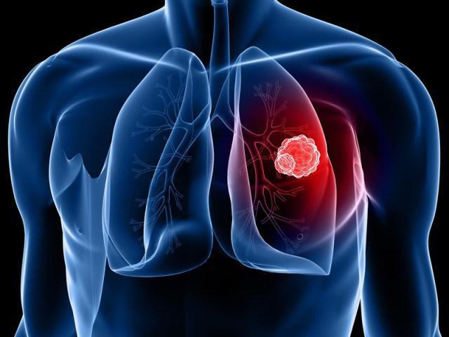 Лечение немелкоклеточного рака легких дакомитинибом