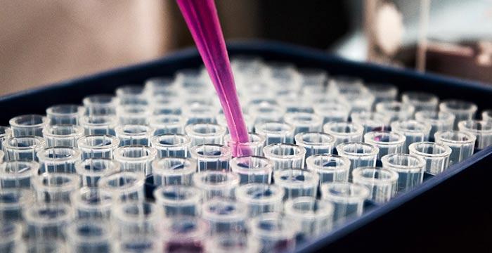 Анализ на рак молочной железы