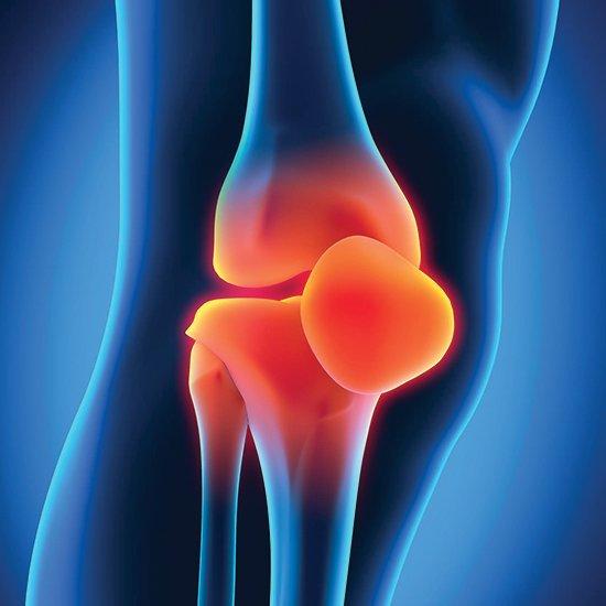 Прошло тестирование самых эффективных препаратов от остеоартрита