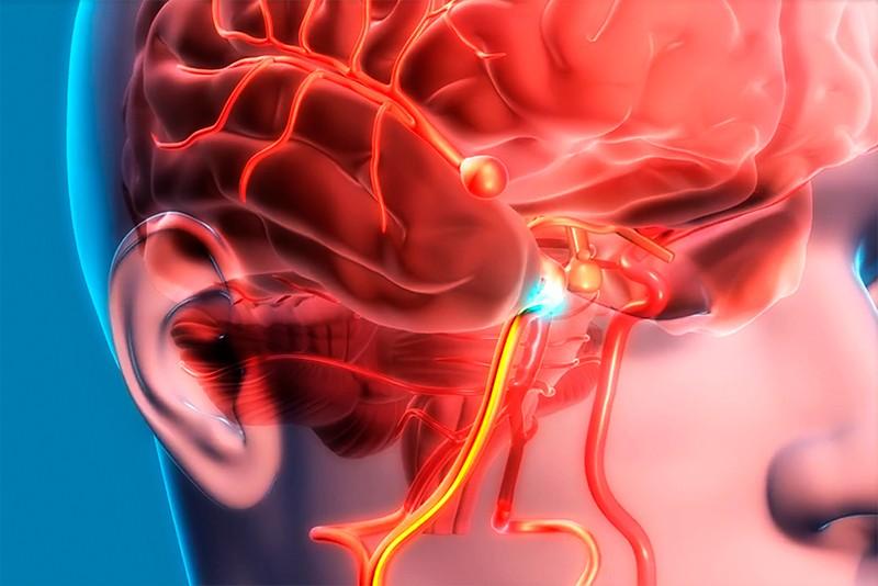Что такое аневризма сосудов головного мозга?