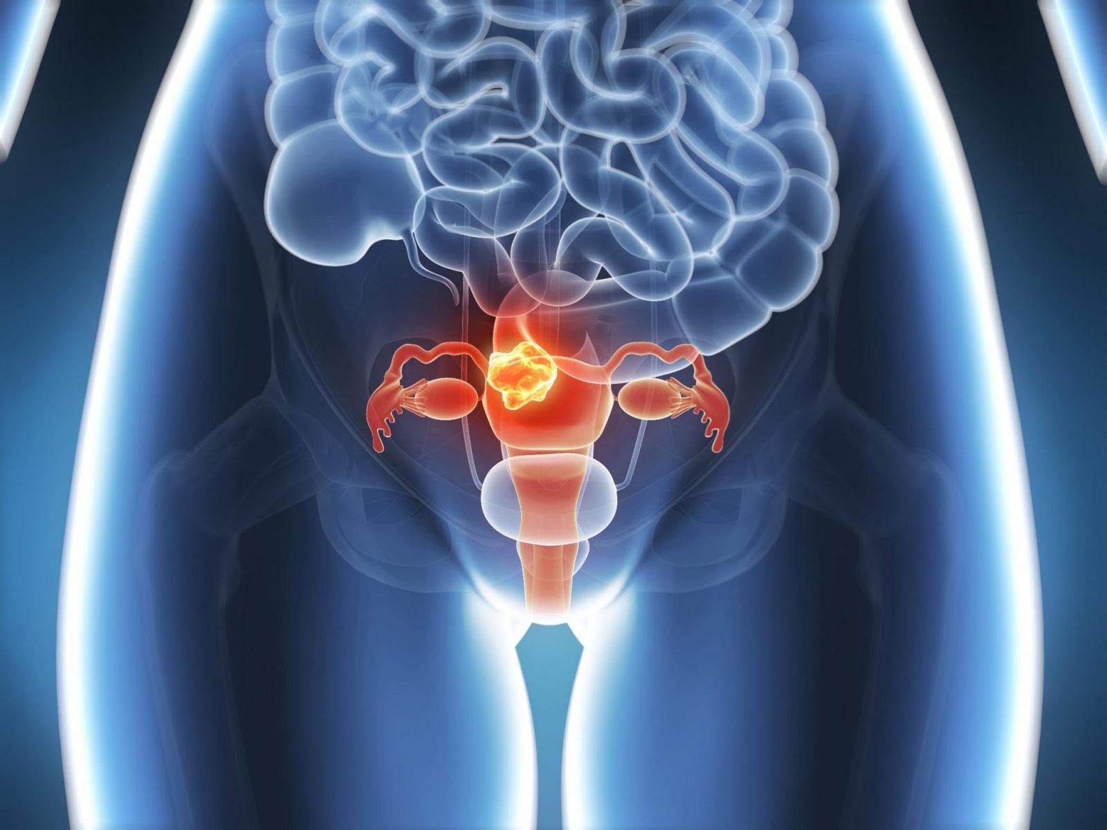 Общая информация о раке матки